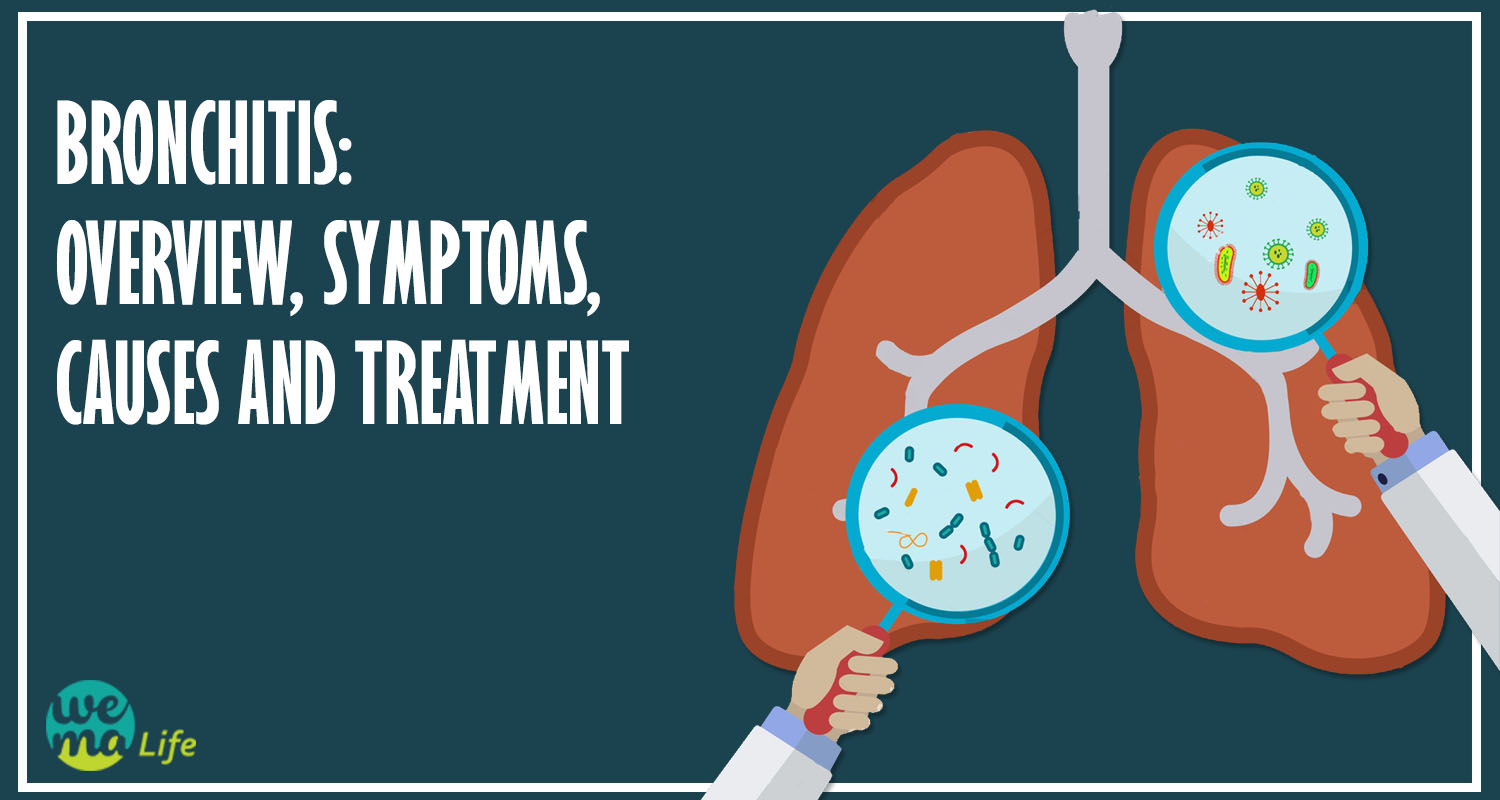 Bronchitis: Overview, Symptoms, Causes and Treatment