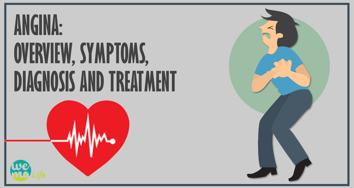 ANGINA: OVERVIEW, SYMPTOMS, DIAGNOSIS AND TREATMENT